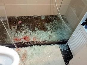 玻璃爆裂客人受伤  酒店:您久经风雨这不算什么