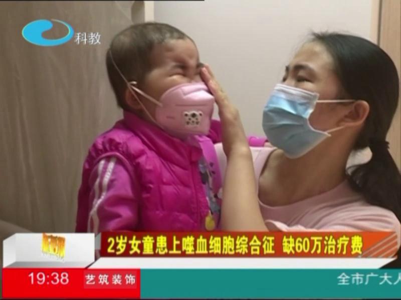 2岁女童患上噬血细胞综合征 缺60万治疗费